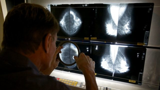 Breast cancer care becomes troubling casualty of COVID-19 pandemic