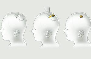 Elon Musk shows Neuralink brain implant working in a pig